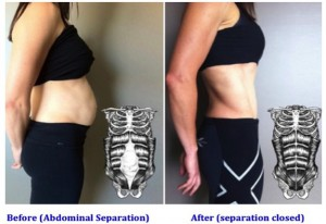 abdominal_separation_in_copy_585x430