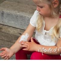 Tips to help treat eczema – naturally