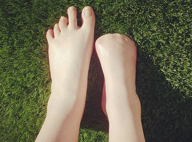 toes-amuptated