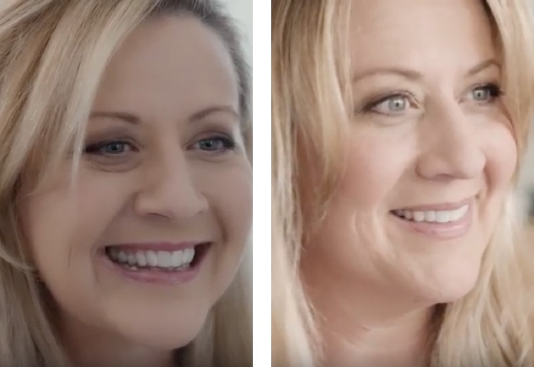 invisalign-nikki-before-after
