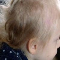Mum Devastated After Daughter Returns From Sleepover With A Mullet