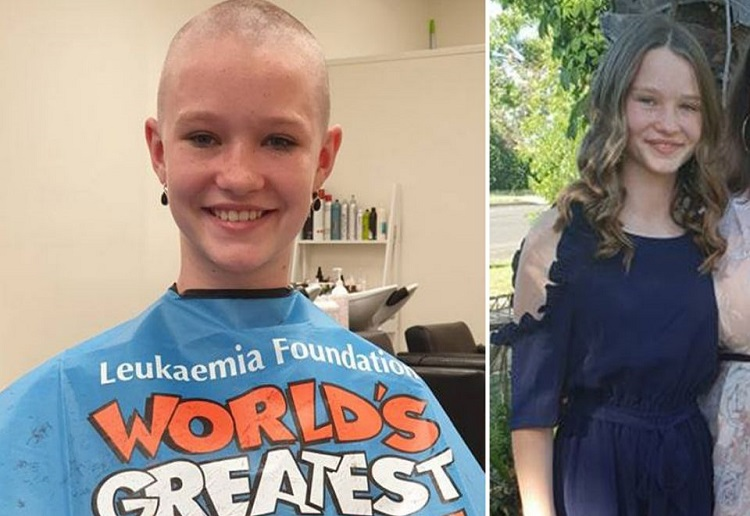 Young Girl Bullied For Shaving Her Head for Charity
