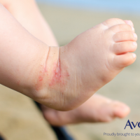 Eczema In Babies; 4 Things You Need To Know