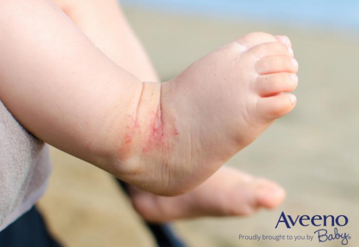 eczema in babies - Aveeno baby dermexa wash